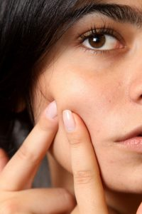 9 Ways to Treat Acne Naturally