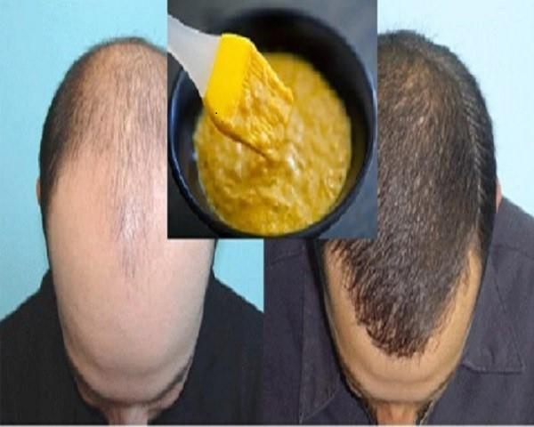 Rụng tóc, hói đầu: hãy ủ ngay hỗn hợp rẻ tiền này