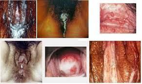 Keluar Cairan Putih Seperti Santan di Vagina, penyembuhan penyakit sipilis secara alami, cara penyembuhan sipilis pada pria, cara penyembuhan sipilis raja singa, pengobatan sipilis di bandung, pengobatan sipilis di medan, pengobatan sipilis di bali, pengobatan sipilis dengan propolis, pengobatan sipilis dengan antibiotik, pengobatan sipilis dokter, pengobatan sipilis di surabaya, pengobatan sipilis dengan penyuntikan, pengobatan sipilis di jogja, fase penyembuhan sipilis, pengobatan gejala sipilis, pengobatan herbal sipilis, pengobatan sipilis kaskus, lama penyembuhan sipilis, pengobatan sipilis medis, masa penyembuhan sipilis, obat penyembuhan sipilis, penyembuhan sipilis tanpa obat, penyembuh penyakit sipilis, penyembuhan penyakit sipilis, cara penyembuhan penyakit sipilis pada wanita, penyembuhan total penyakit sipilis, pengobatan sipilis pada pria, pengobatan sipilis pada wanita, pengobatan sipilis pada wanita hamil, pengobatan sipilis pada ibu hamil, pengobatan penyakit sipilis pada wanita, pengobatan penyakit sipilis kesehatan, pengobatan penyakit sipilis secara alami, pengobatan penyakit sipilis secara medis, cara penyembuhan penyakit sipilis, cara penyembuhan penyakit sipilis pada pria, proses penyembuhan penyakit sipilis, pengobatan sipilis secara alami, pengobatan sipilis secara medis, pengobatan sipilis secara tradisional, cara penyembuhan penyakit sipilis secara alami, pengobatan sipilis terbaru, pengobatan sipilis tradisional, cara penyembuhan sipilis tanpa obat, tanda penyembuhan sipilis, pengobatan untuk sipilis, pengobatan sipilis untuk ibu hamil, lama pengobatan sipilis, lama penyembuhan penyakit sipilis, berapa lama penyembuhan sipilis, lama penyembuhan penyakit sipilis, berapa lama pengobatan sipilis,berapa lama penyembuhan sipilis sampai tuntas, berapa lama penyembuhan sipilis, penyembuhan sipilis sampai tuntas, penyembuhan sipilis, lama penyembuhan sipilis, sipilis sampai tuntas, berapa lama penyembuhan sipilis, berapa lama sipilis sembuh, berap