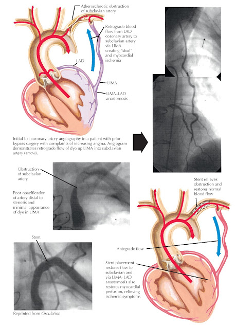 Left internal mammary artery (LIMA) and subclavian disease. LAD, Left anterior descending.