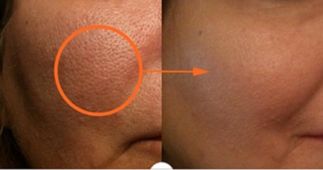 Mis poros quedaron como los de un bebe cuando aplique este remedio en mi cara. Úsalo y veras