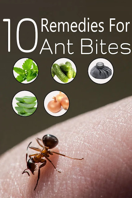 10 Soothing Home Remedies For Ant Bites