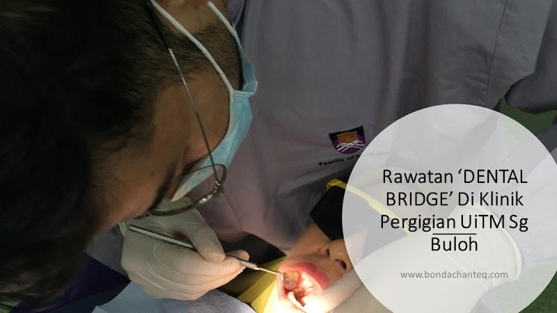 Rawatan 'DENTAL BRIDGE' Di Klinik Pergigian UiTM Sg Buloh