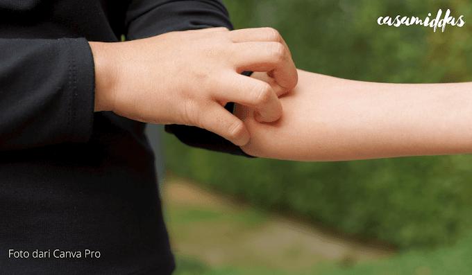 Mempunyai Kulit Sensitif, Berikut Tips Memilih Pelembab Wajah Yang Tepat