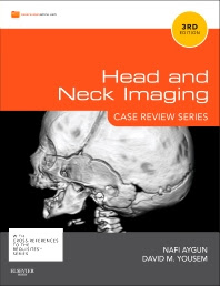 Head and Neck Imaging: Case Review Series- Nafi Aygun
