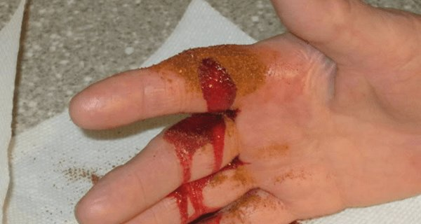 How To Stop Serious Bleeding In Just 10 Seconds!