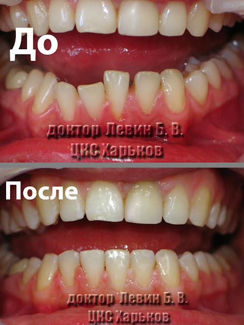 Вид зубов до и после лечения