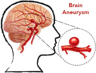 http://neurosurgerynow.com/aneurysms-of-brain/