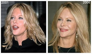 Star Plastic Surgery Before And After January 2013