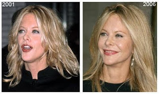 Meg Ryan Plastic Surgery Before And After Facelift And
