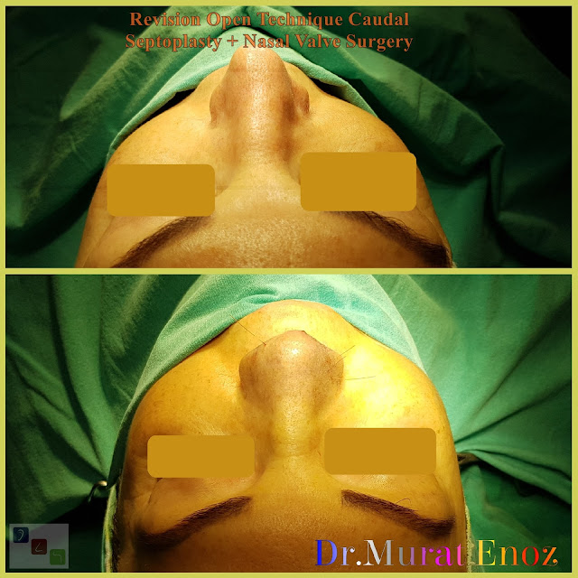 caudal septum deviation, anterior septal dislocation,caudal septal dislocation,  caudal septoplasty,Nasal valve collapse surgery,