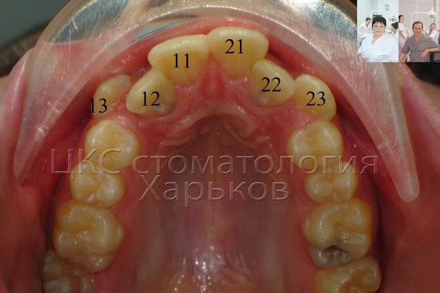 Скученное положение зубов, показание для удаления зубов