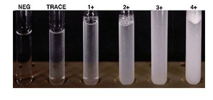 Grade presipitat uji konfirmasi protein pada urin