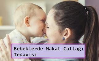 Bebeklerde Makat Çatlağı Tedavisi