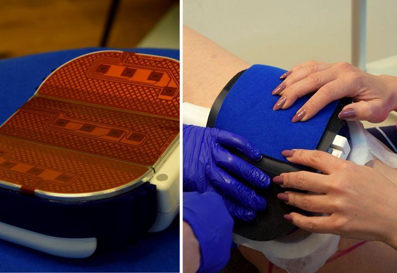 Coolsculpting-Test-Ablauf-Behandlung-1