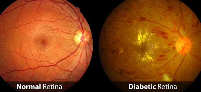 Diabetic Retina and Normal Retina Differentiation