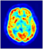 """<Imgsrc =""""Tomografía-emisión-positrones.jpg"""" width = """"189 height """"213"""" border = """"0"""" alt = """"Tomografia del cerebro por emisión de positrones."""">"""