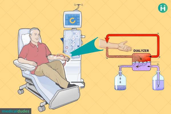 Dialysis: types, uses, procedure