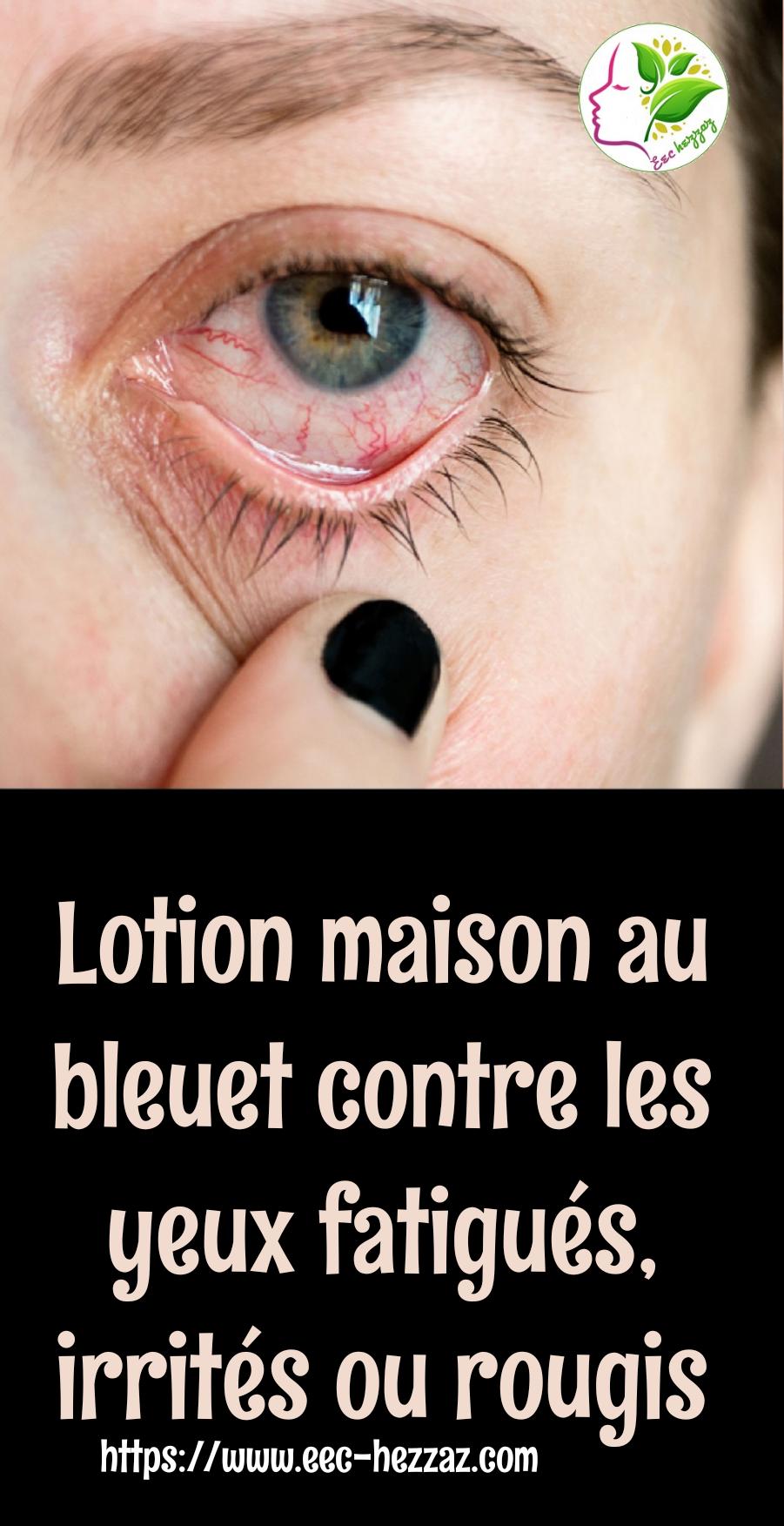 Lotion maison au bleuet contre les yeux fatigués, irrités ou rougis