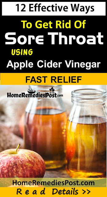 Apple-Cider-Vinegar-For-Sore-Throat, Apple-Cider-Vinegar, Sore-Throat, Home Remedies For Sore Throat, Sore Throat Home Remedies, Sore Throat Treatment, How To Cure Sore Throat
