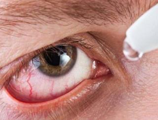 Mengetahui Penyakit Mata yang Menyebabkan Kebutaan