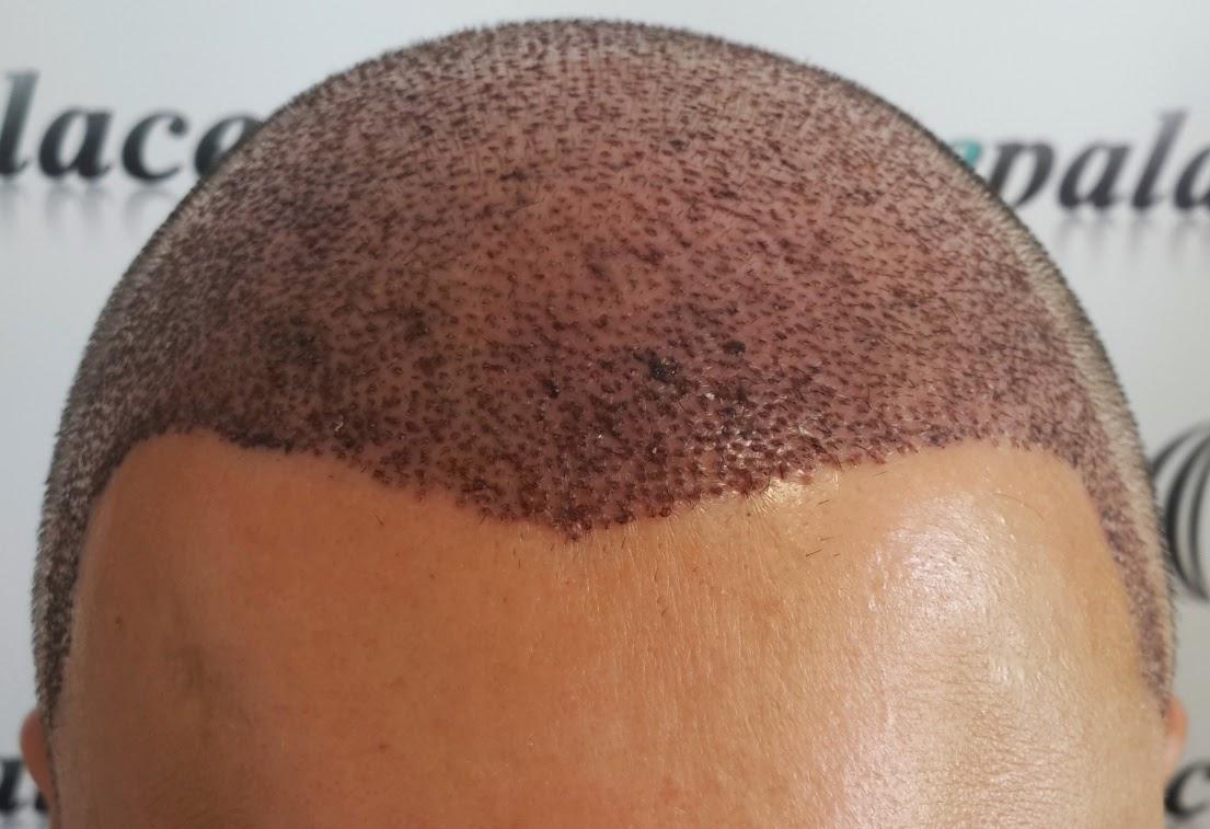 Saç Ekimi Nedir Saç Ekimi Nasıl Yapılır