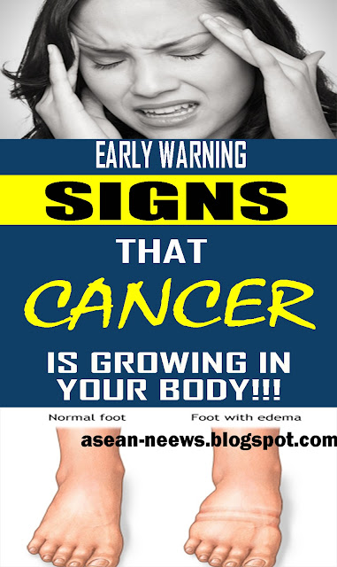 5 Early cancer symptoms you shouldn't ignore
