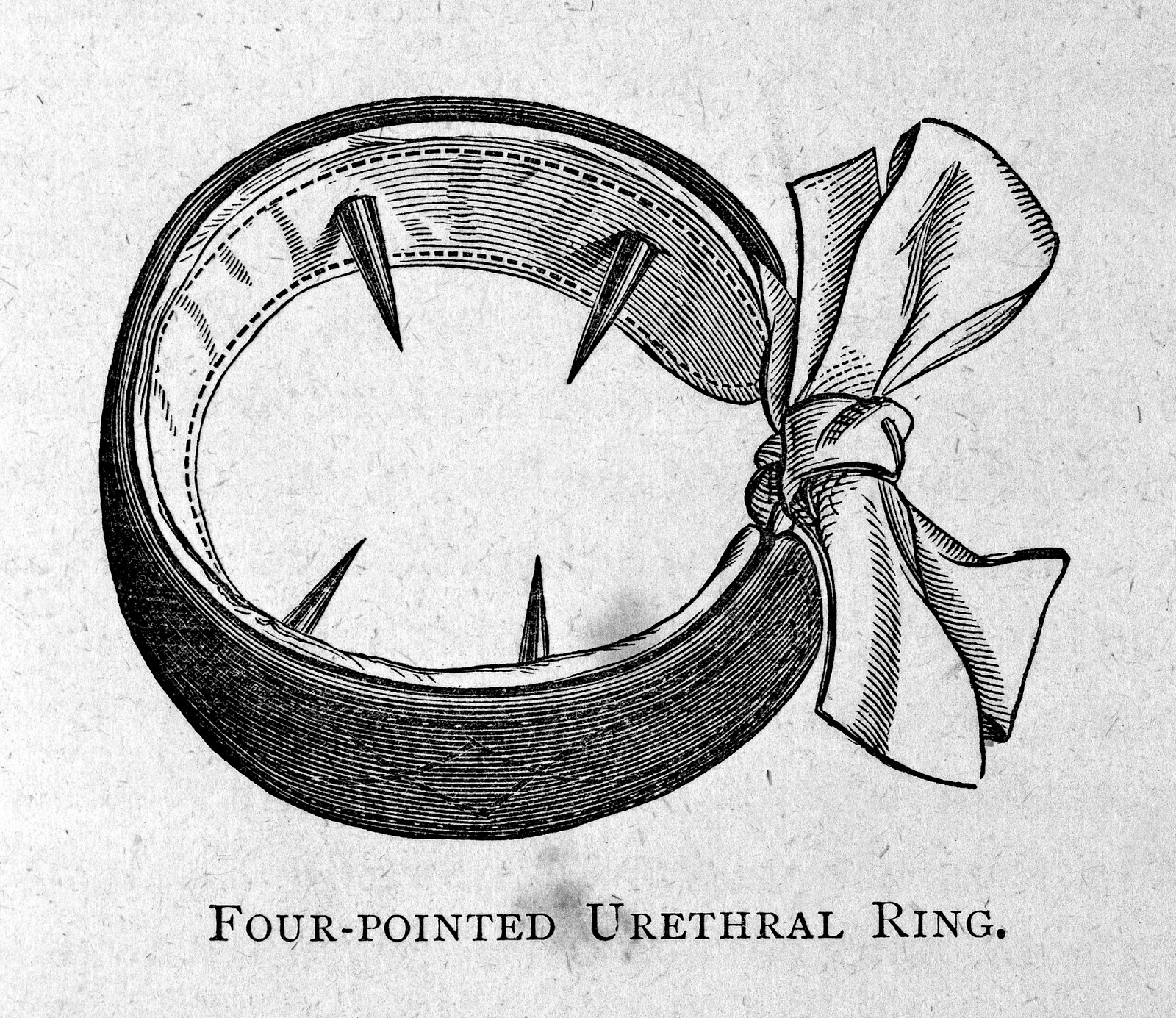 Four Pointed Urethral Ring for the Treatment of Masturbation, 1887. (Image  via Wellcome Library CC BY 4.0)