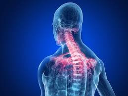 Penyebab Nyeri Leher & Pundak Kaku, ini Obat Sakit Leher & Pundak Kaku Alami dan Ampuh