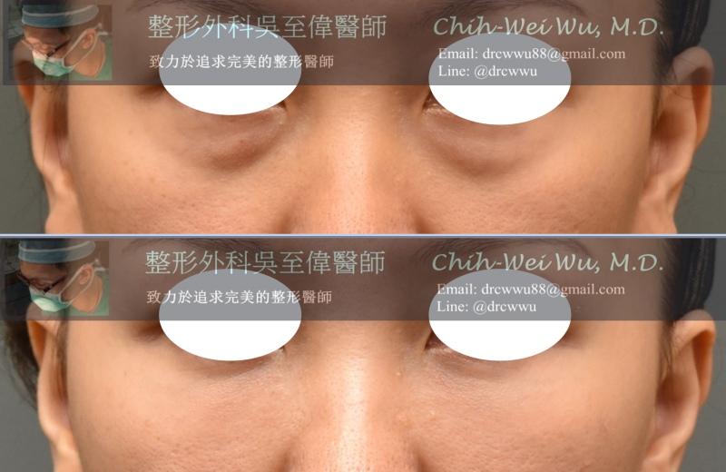 2020年7月最新自體脂肪補臉案例,填補淚溝與蘋果肌,可以改善眼週細紋和黑眼圈,自體脂肪移植權威吳至偉醫師