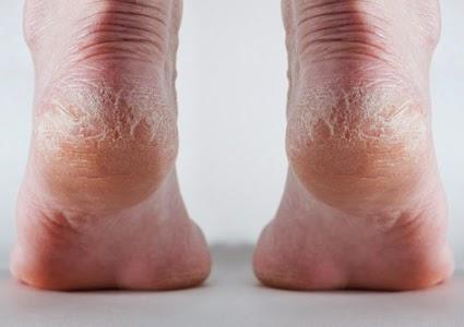 อาการส้นเท้าแตก