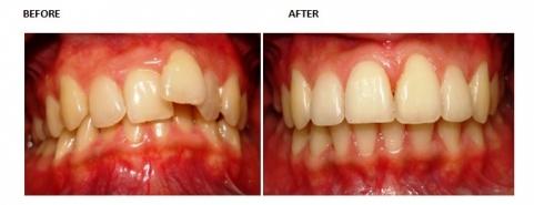http://chennaidentalimplantsclinic.com/full-mouth-rehabilitation/