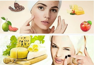 Acne Prevention - Lifestyle and Diets
