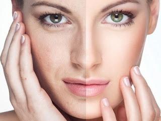 Nám da và nguyên nhân gây nám da
