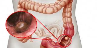 Obat  untuk tumor usus
