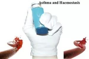 Asthma and Haemostasis