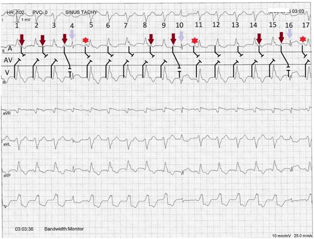 ecg rhythms  practical approach of wide complex tachycardia in cardiac telemetry
