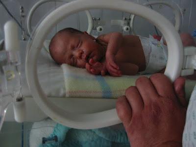 prematüre-bebek-hastalikbelirtileri.net