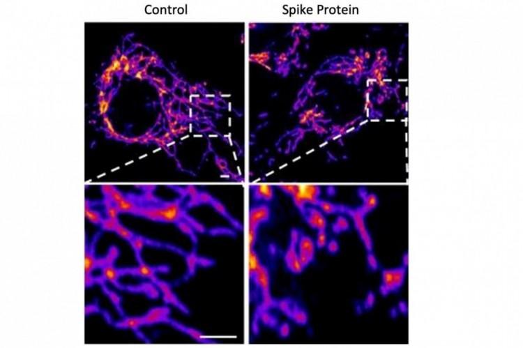 Imagens representativas de células de controle do endotélio vascular (esquerda) e células tratadas com a proteína SARS-CoV-2 Spike (direita) mostram que a proteína spike causa aumento da fragmentação mitocondrial em células vasculares. Crédito: Salk Institute
