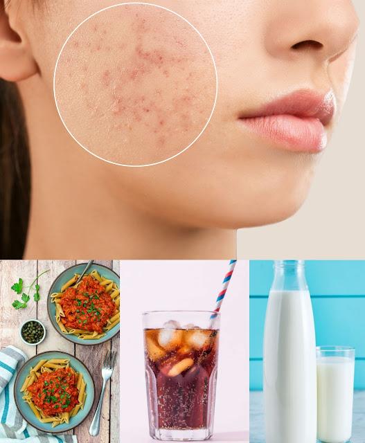 La liste des aliments qui causent les boutons sur le visage