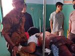 Pria di Sape Kabupaten Bima Tewas dibacok
