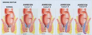 Obat Ambeien ampuh tanpa operasi anjuran dokter