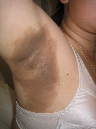 PCOS | Acanthosis nigricans involving the axilla