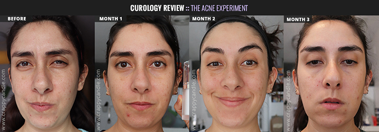 Curology Before & After (3 Months) - The Acne Experiment