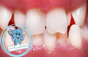 انحراف الاسنان ،اعوجاج الاسنان ،علاج انحراف الاسنان ،علاج اعوجاج الاسنان بدون تقويم ،اعوجاج الاسنان الامامية