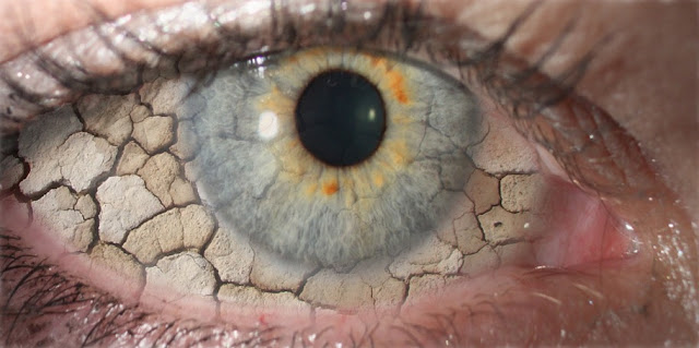 Mënyra të thjeshta për të shëruar natyralisht Therjen e Syve