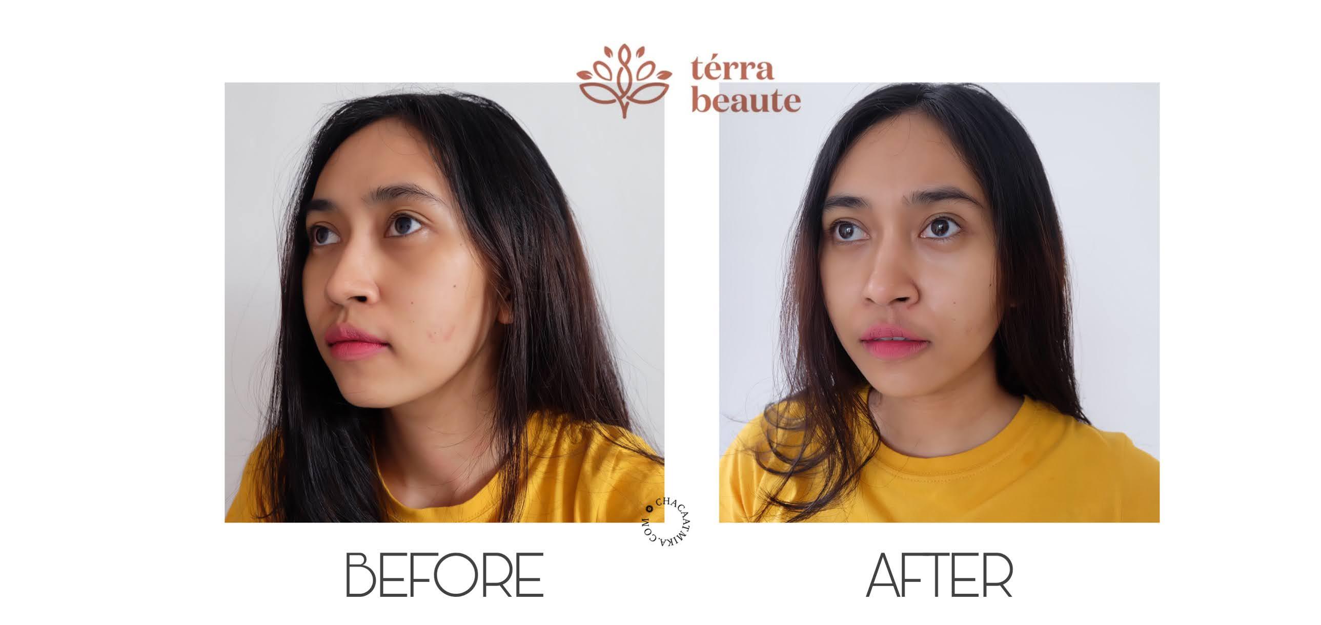 Before After Penggunaan Terra Beaute Skin Care