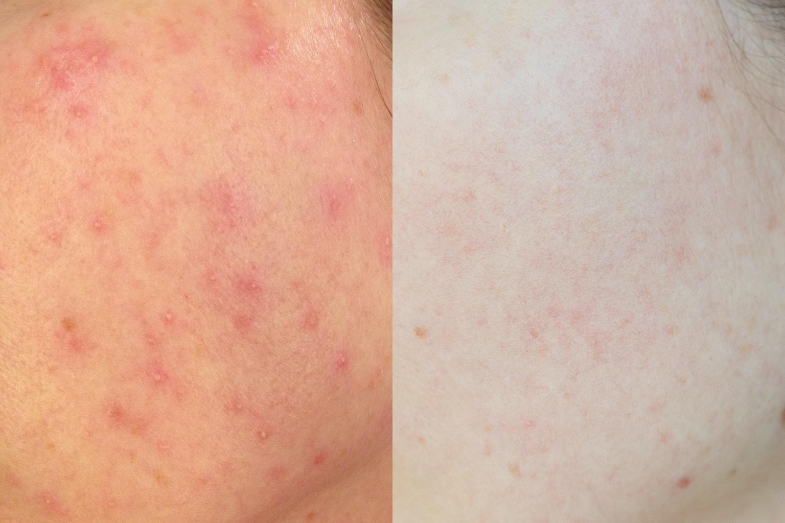 Rosazea Erfahrungsbericht Tipps Hautpflege Vergleich Schub und Haut heute