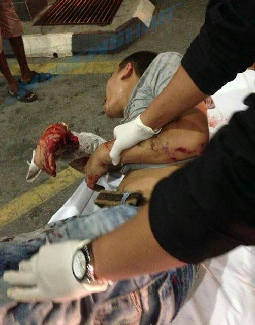 Gagal Curi Motor, Geng Samseng Tembak,Tetak & Langgar Pengawal Keselamatan, Penduduk Pangsapuri