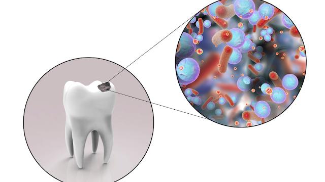 Cara mengatasi gigi keropos